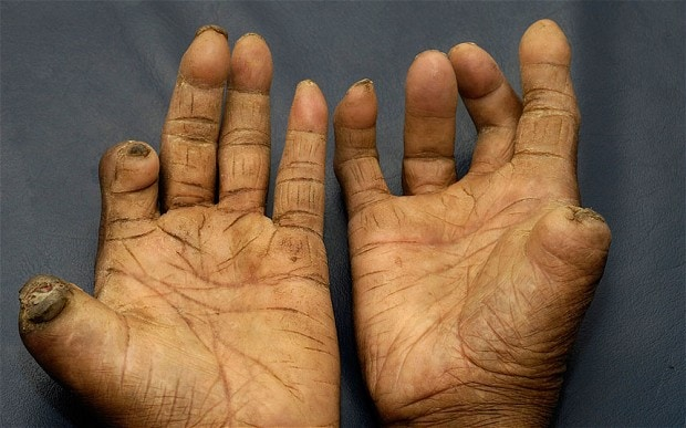 Tropical Infectious Diseases Focused On Leprosy